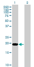 H00004049-D01P - TNF-beta / Lymphotoxin-alpha