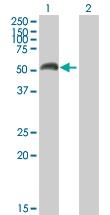 H00004128-B01P - Amine Oxidase A