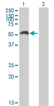H00004128-B01P - Amine Oxidase A / MAOA