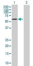 H00004128-B02 - Amine Oxidase A / MAOA