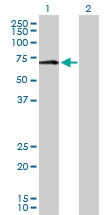 H00004128-D01P - Amine Oxidase A