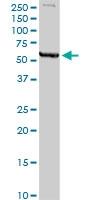 H00004128-D01P - Amine Oxidase A / MAOA