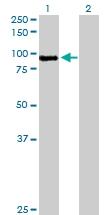 H00004485-D01P - Macrophage stimulatory protein