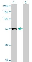 H00004534-D01P - Myotubularin / MTM1