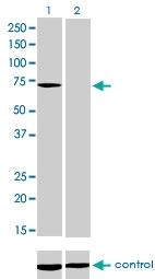 H00004534-M01 - Myotubularin / MTM1