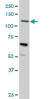 H00004585-M07 - Mucin-4