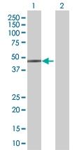 H00004598-B01 - Mevalonate kinase