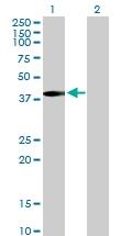 H00004598-B01P - Mevalonate kinase