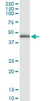 H00004598-D01 - Mevalonate kinase