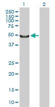 H00004653-D01P - Myocilin