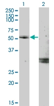 H00004653-M02 - Myocilin