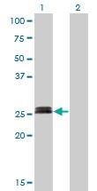 H00004656-M01 - Myogenin