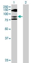 H00004684-D01P - CD56