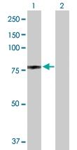 H00004691-D01P - Nucleolin