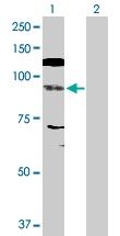 H00004776-D01P - NFATc4 / NFAT3
