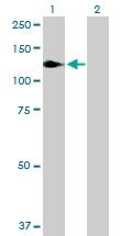 H00004790-B01P - NF-kB p105 / p50