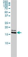 H00004830-M01 - NDP kinase A
