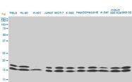 H00004830-M02 - NDP kinase A