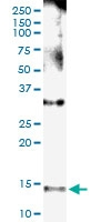 H00004867-D01 - Nephrocystin 1