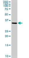 H00004908-D01P - Neurotrophin 3 / NTF3