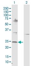 H00004909-D01P - Neurotrophin 4 / NTF4