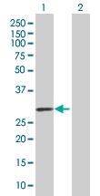 H00005008-B01 - Oncostatin-M