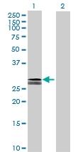 H00005008-B02 - Oncostatin-M