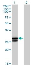 H00005008-B02P - Oncostatin-M