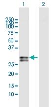 H00005008-D01 - Oncostatin-M
