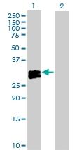 H00005008-D01P - Oncostatin-M