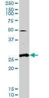 H00005047-D01P - Glycodelin / PAEP