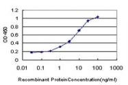 H00005087-M02 - PBX1