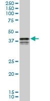 H00005094-M04 - PCBP2 / hnRNP-E2
