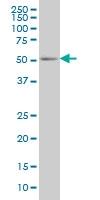 H00005184-M01 - Peptidase D / PEPD