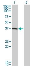 H00005192-M01 - Peroxin 10 / PEX10 / RNF69