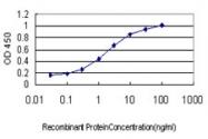 H00005217-M04 - Profilin 2 (PFN2)