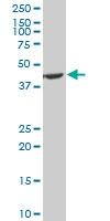 H00005230-A01 - Phosphoglycerate kinase 1 (PGK1)