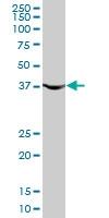 H00005230-M02 - Phosphoglycerate kinase 1 (PGK1)