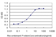 H00005241-M01 - Progesterone receptor
