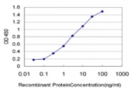 H00005241-M04 - Progesterone receptor