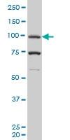H00005241-M05 - Progesterone receptor