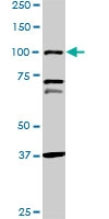 H00005241-M07 - Progesterone receptor
