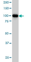 H00005241-M08 - Progesterone receptor