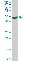 H00005265-D01P - Alpha-1-antitrypsin