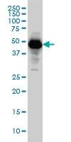 H00005274-M01 - Neuroserpin / SERPINI1