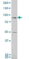 H00005317-A01 - Plakophilin 1 / PKP1