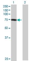H00005317-B01 - Plakophilin 1 / PKP1