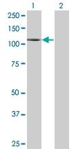 H00005337-M01 - Phospholipase D1 / PLD1