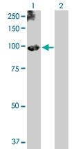 H00005340-D01P - Plasminogen / PLG
