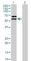 H00005345-B01P - Alpha-2-antiplasmin / SERPINF2